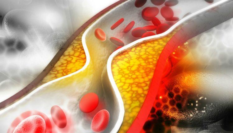 تقليل مستوى الكوليسترول في الدم