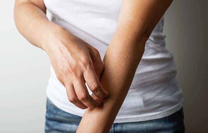 فوائد الثوم في الأكزيما