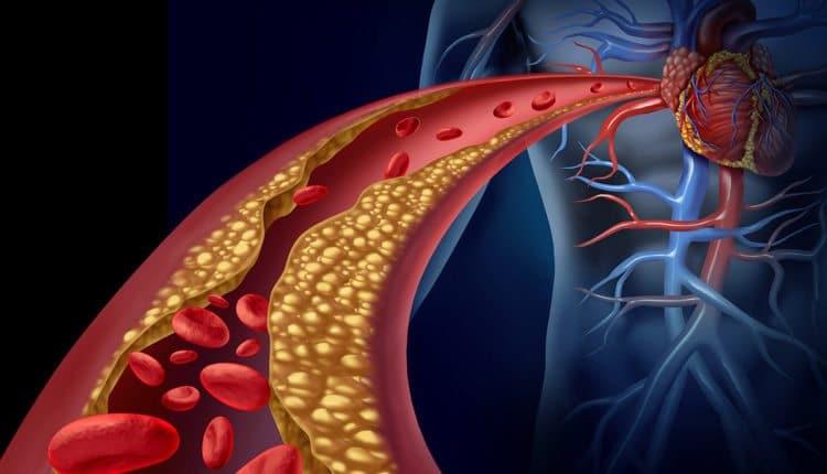 امراض القلب والأوعية الدموية